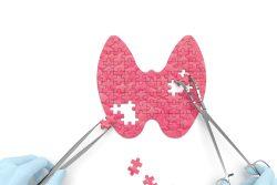 Недостаток йода в организме: симптомы, лечение, профилактика