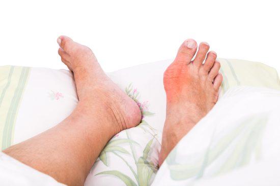 Диета при подагре на ногах